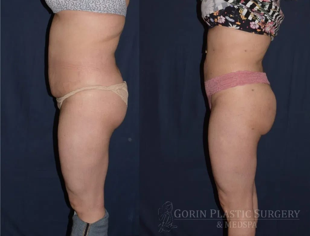 Brazilian Butt lift before and after patient 4 side view