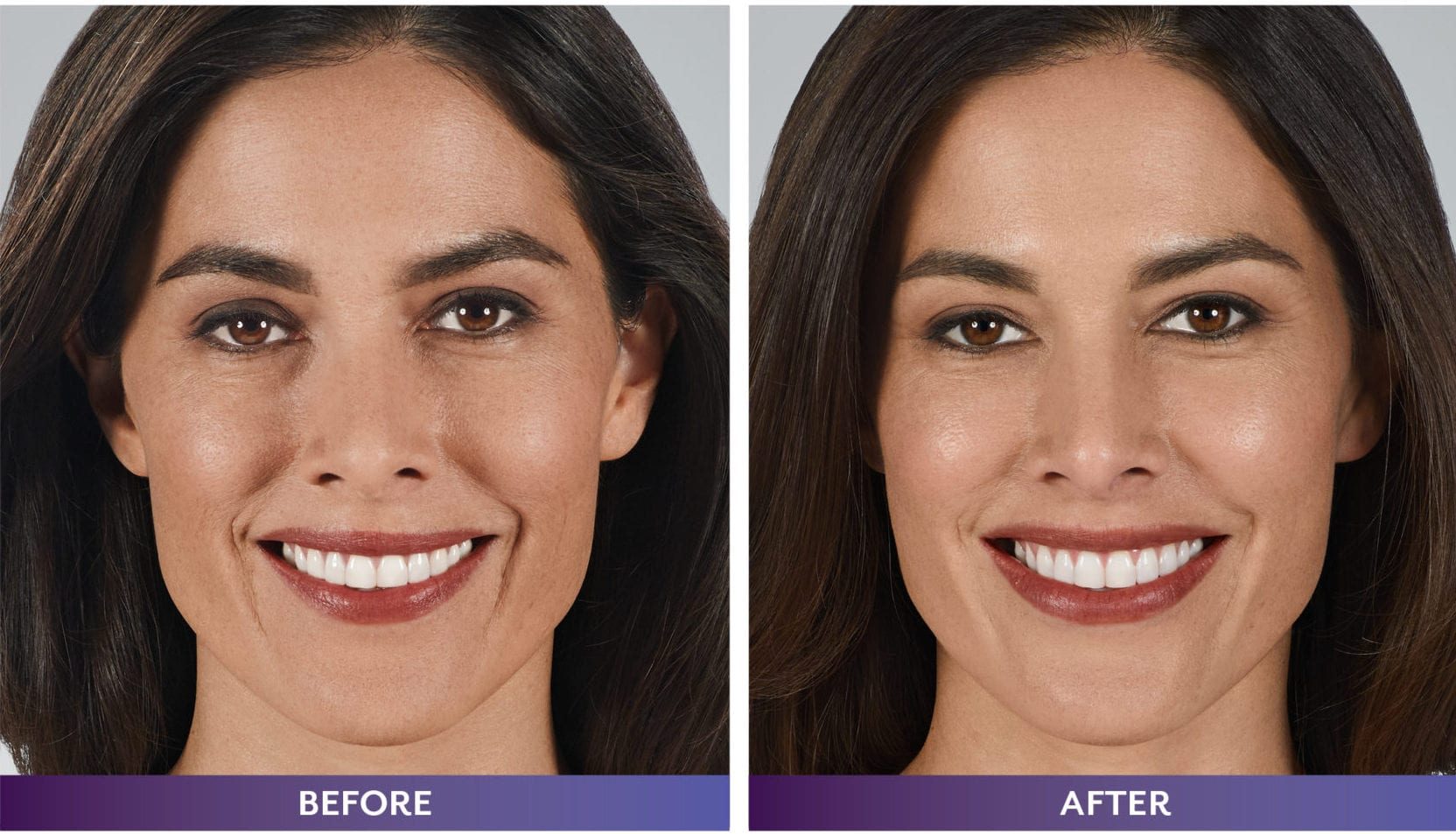 Juvederm results female before and after